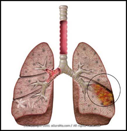 bronchial_pneumonia550_ab.jpg
